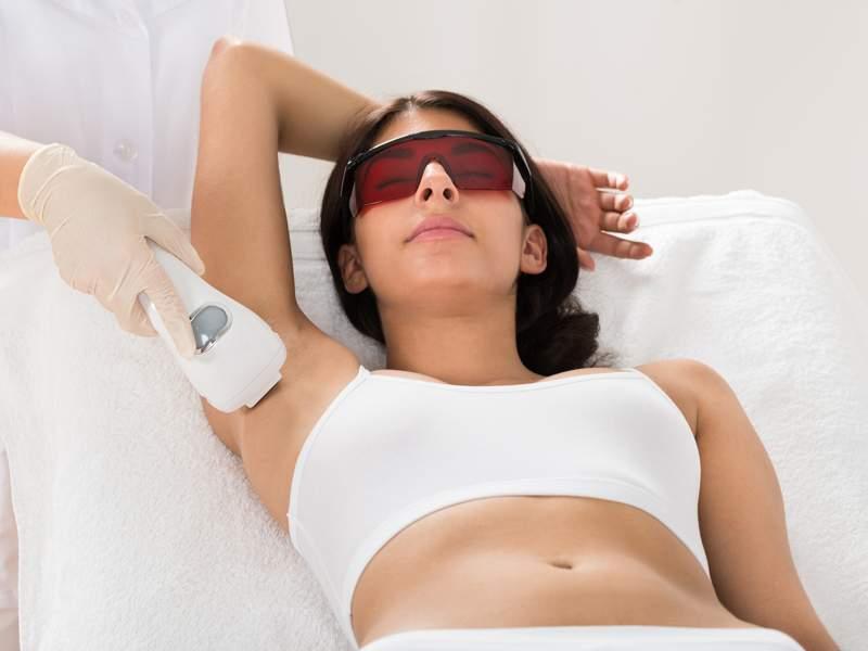 depilazione epilazione laser